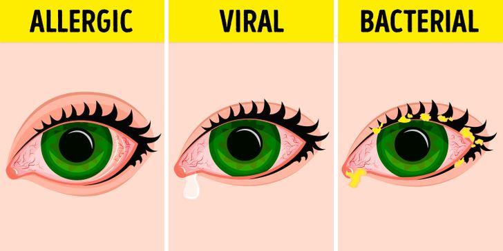 5 Effective Tips